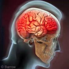 Brain injury 001