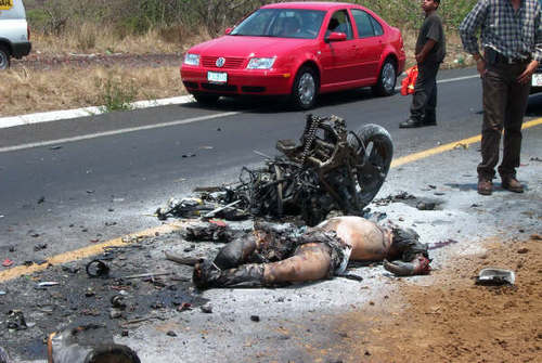 Motorcycle Injury Graphic Photos: This Didn't Have to Happen