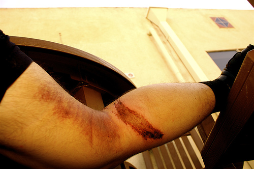 Injury photos are evidence for motorcycle accident lawyers when the cause is not your fault
